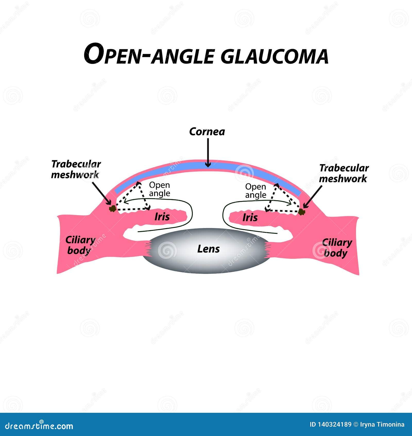 Glaucoma do Aberto-ângulo Um tipo comum de glaucoma A estrutura anatômica do olho Infographics Ilustração do vetor
