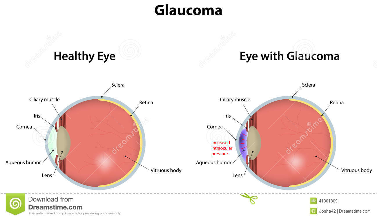 An eye cut saggital labeled diagram with glaucoma.