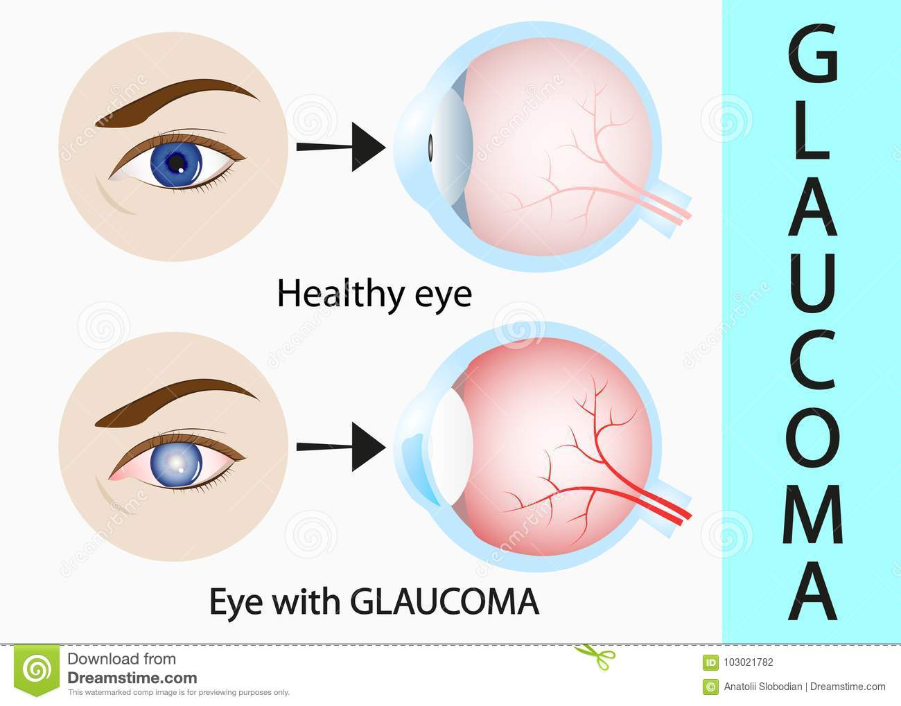 glaucoma and healthy eye detailed structure stock vector
