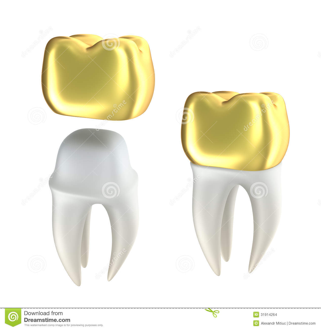 Golden Dental Crowns And Tooth Stock Illustration Illustration Of Ceramic Healthcare 31914264