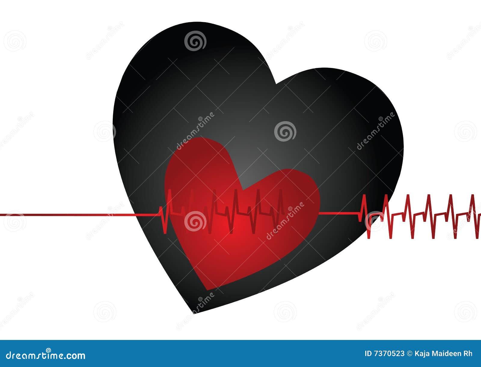 Golpe de corazón
