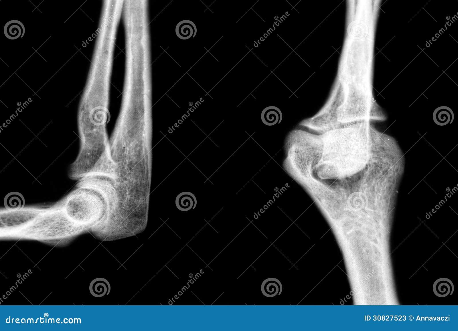 Gomito umano di patologia dei raggi x