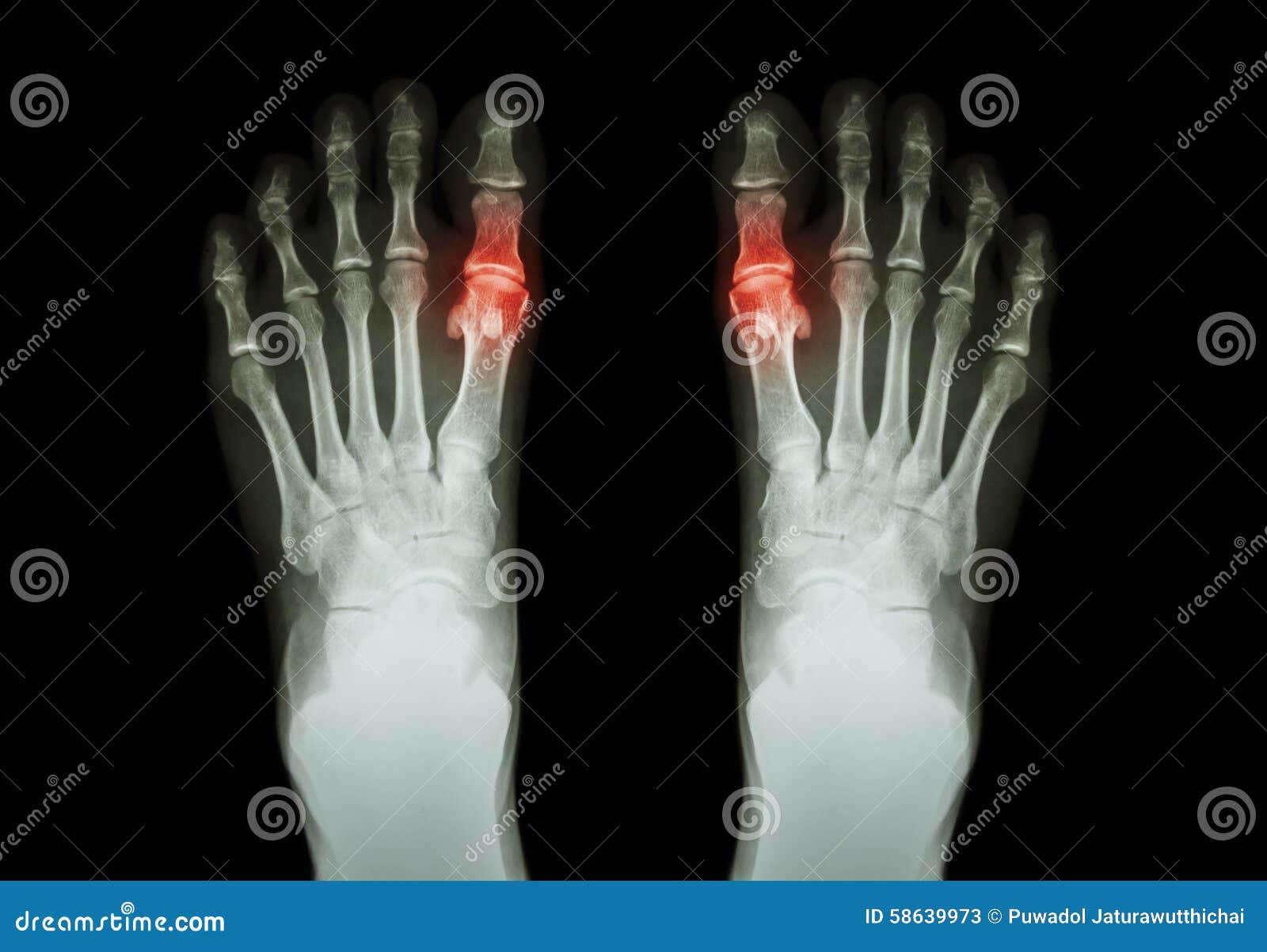 Radiologia delle articolazioni e dei tessuti molli