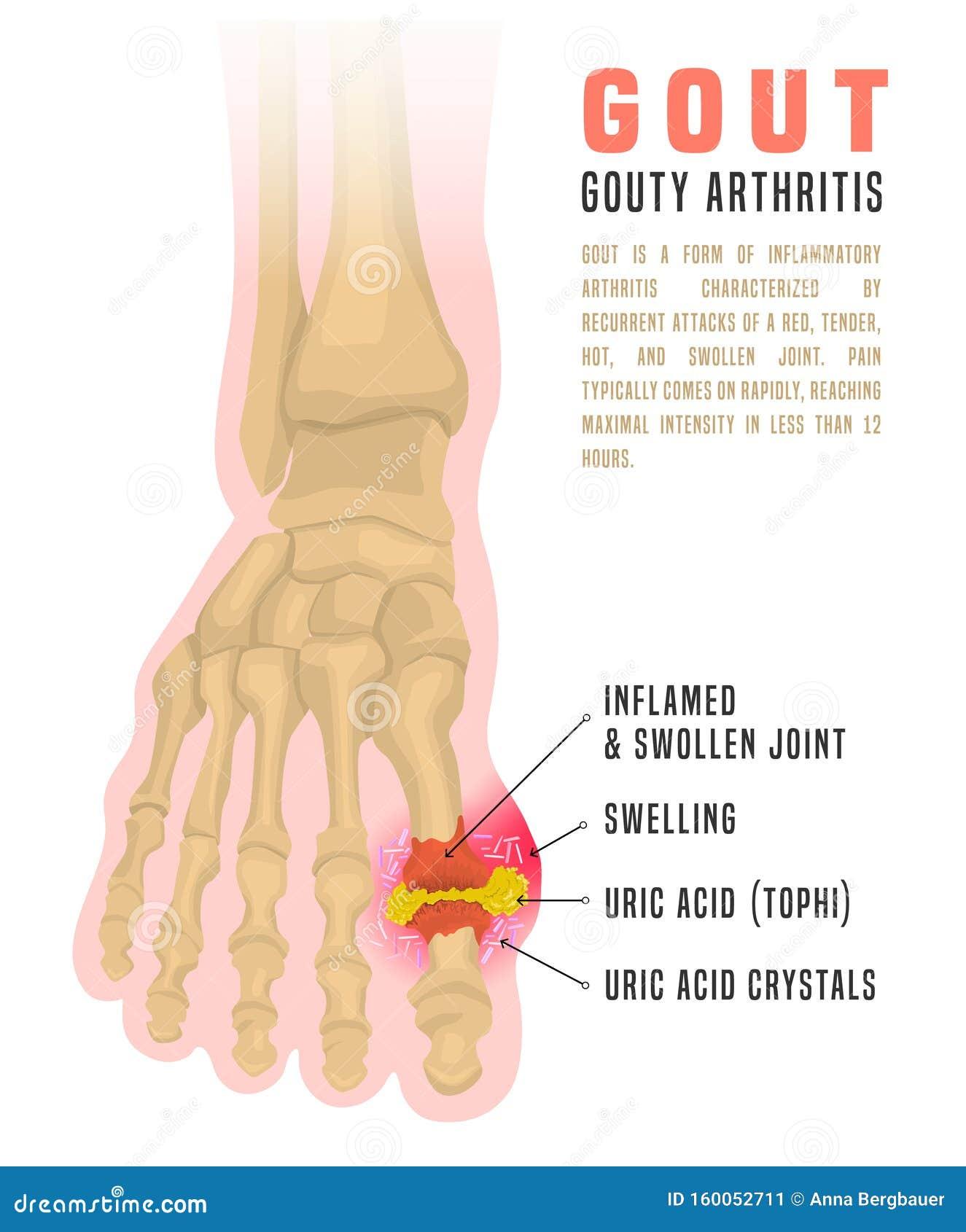 Gout Arthritis Infographic Stock Vector Illustration Of Anatomy 160052711