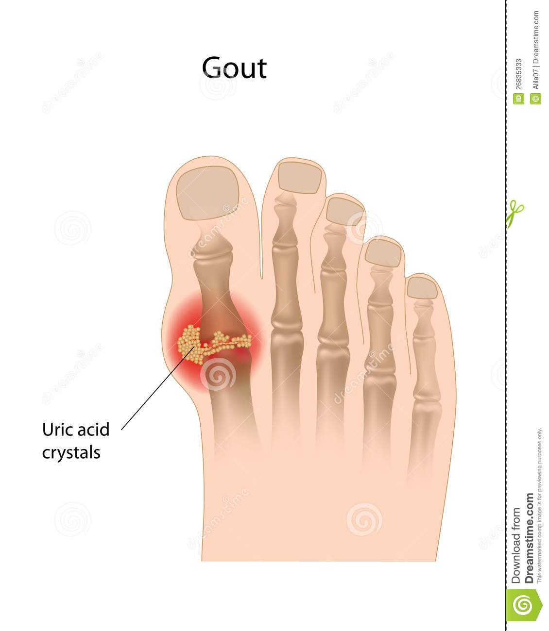 Gout Of The Big Toe Stock Vector Illustration Of Crystals 26835333
