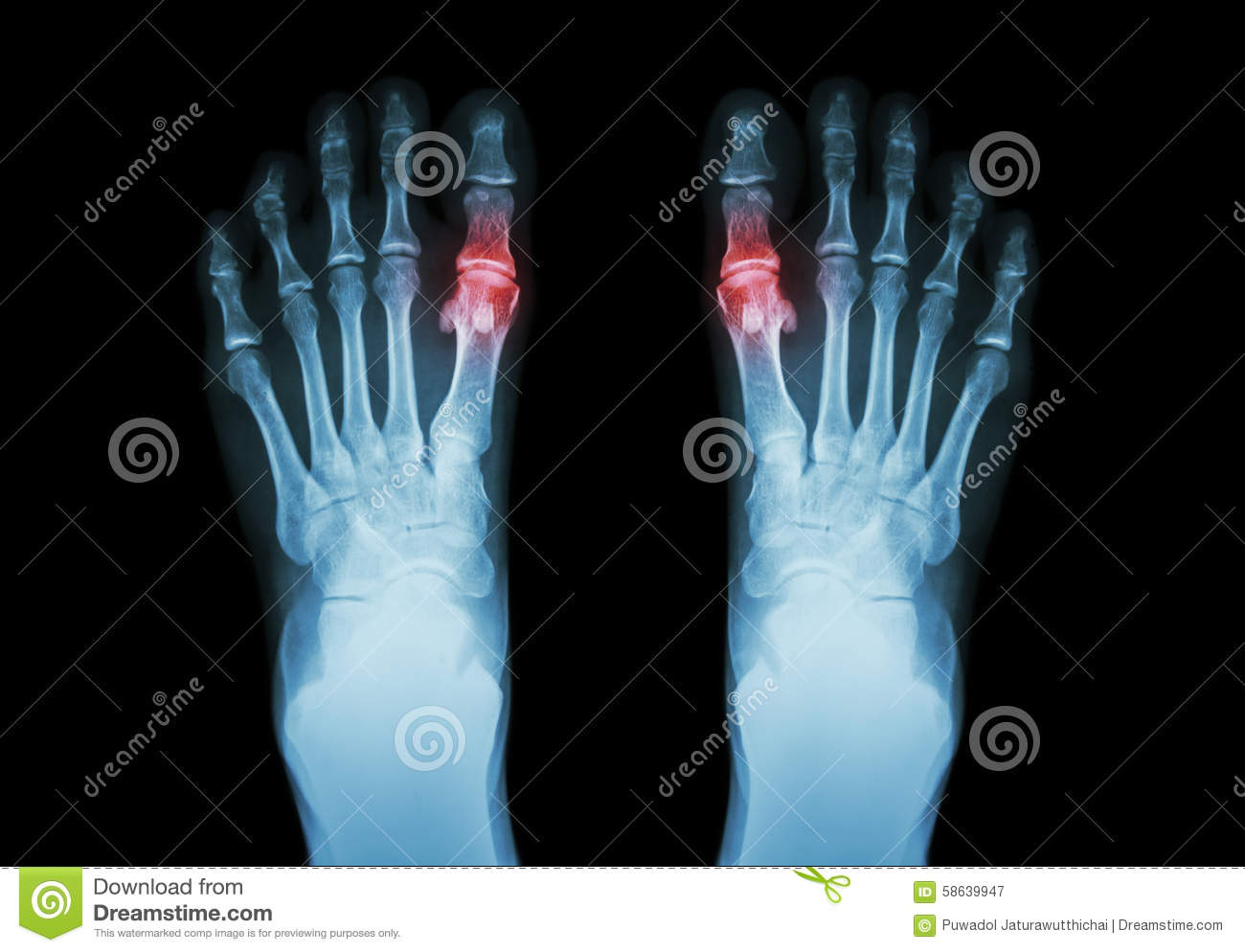 Gout , Rheumatoid arthritis ( Film x-ray both foot and arthritis at first metatarsophalangeal joint ) ( Medicine and Science