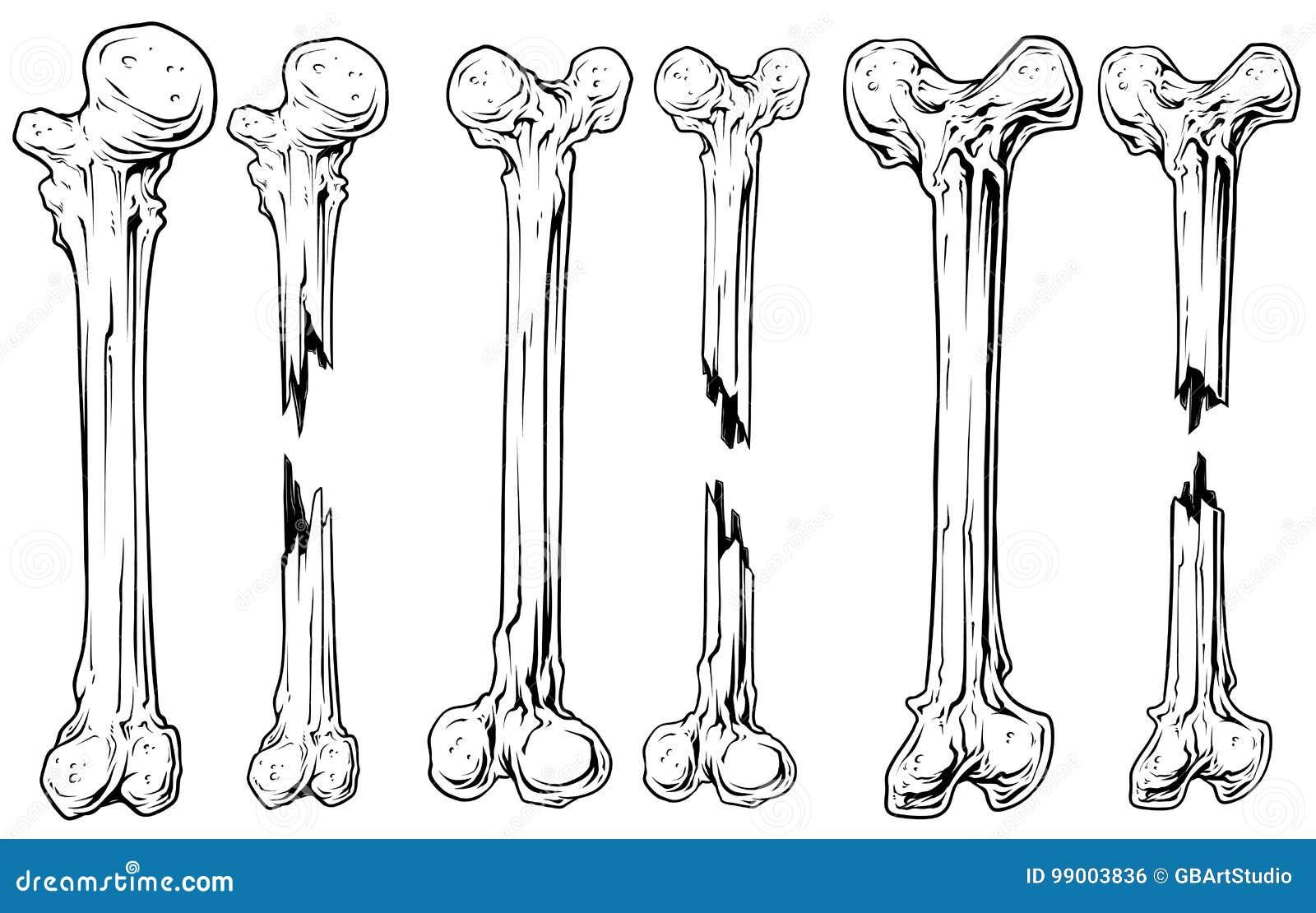 Graficzny czarny i biały łamający kość wektoru set