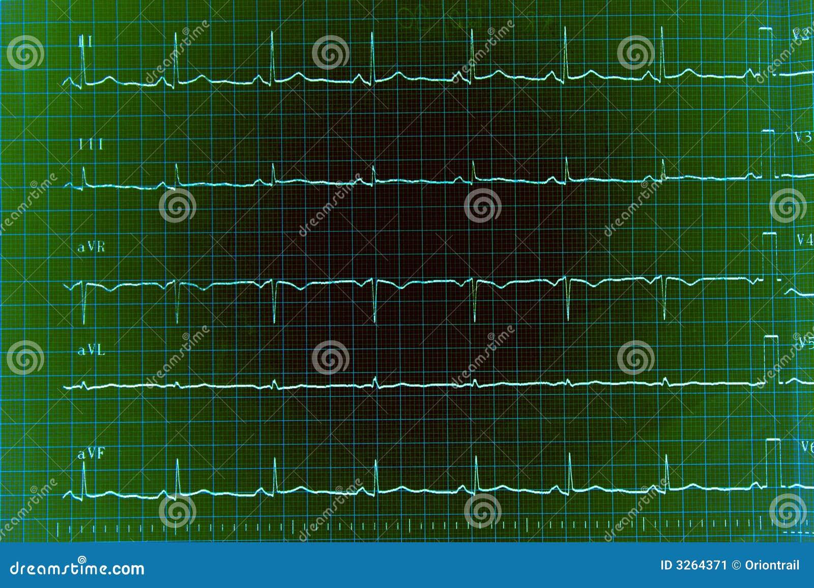 Graphique d ECG