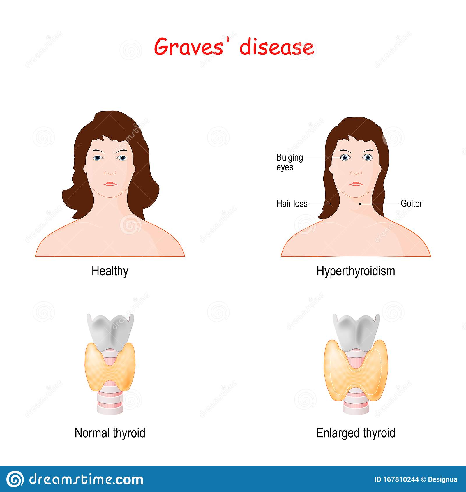 Graves Disease Toxic Diffuse Goiter Stock Vector Illustration