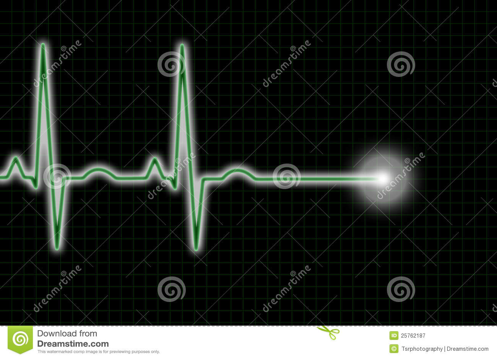 Green Black Ecg Trace Heart Rhythm Illustrations Royalty Free
