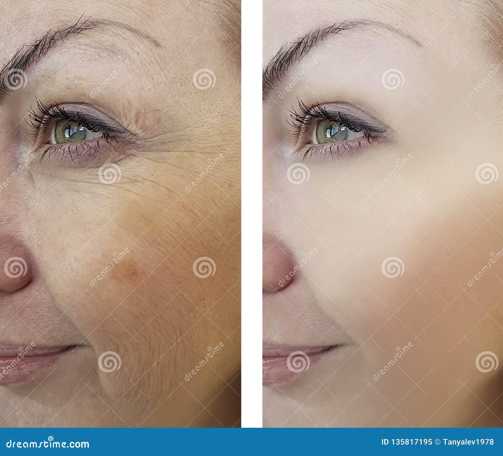 Grinze della ragazza che invecchiano prima e dopo le procedure