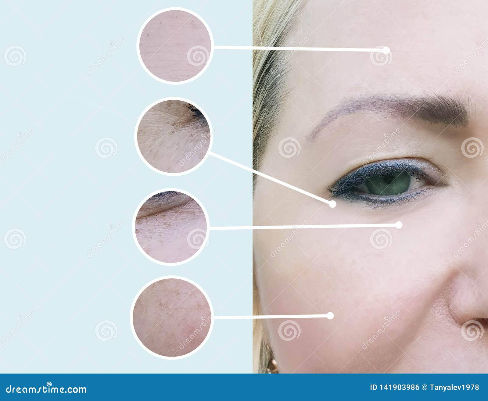 Grinze femminili prima e dopo il collage di procedure di terapia dell estetista