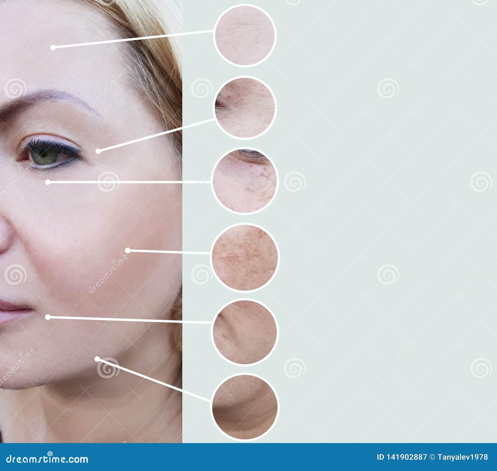 Grinze femminili prima e dopo il collage maturo di procedure di terapia dell estetista di rigenerazione