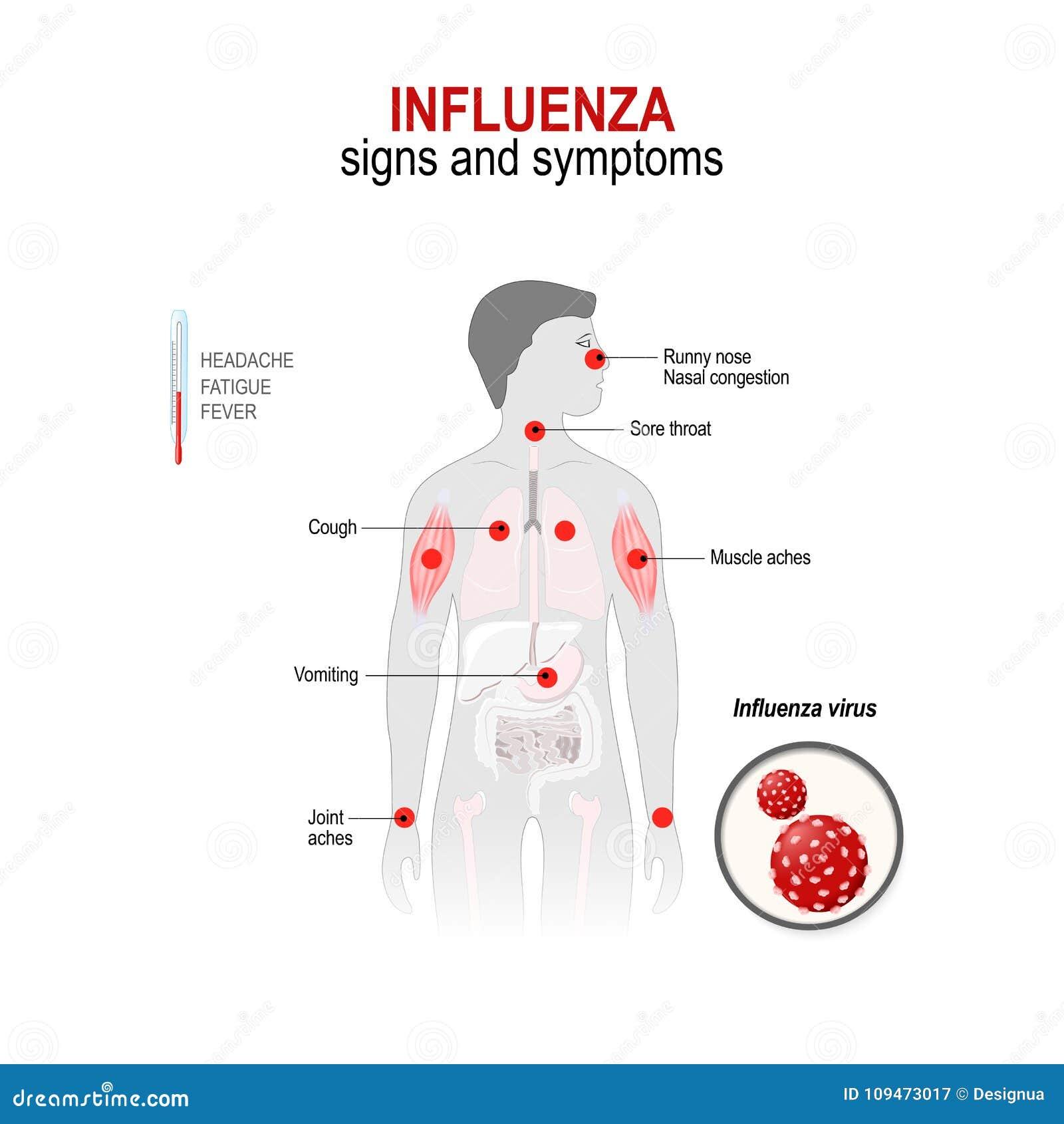 Grippe Signes et symptômes