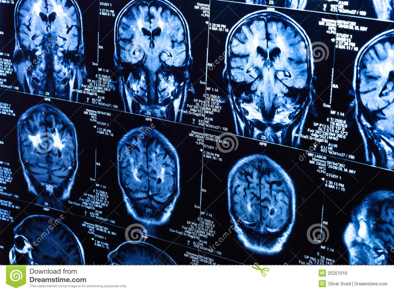 A group of CAT scans of the human brain