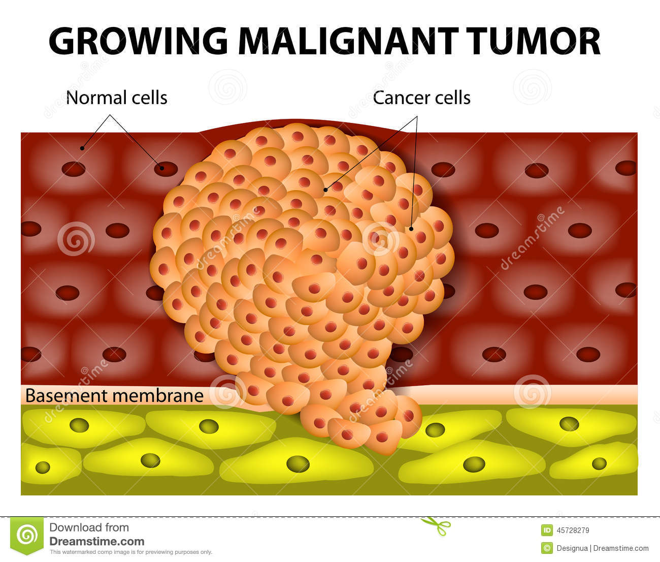 Cancer cells in a growing malignant tumor. malignant neoplasm ...