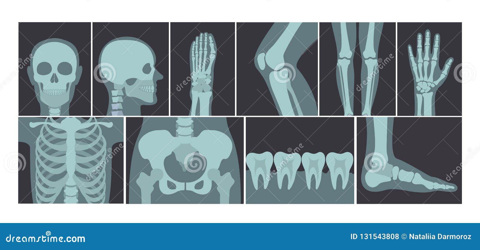 Grupo da ilustração do vetor de muitos tiros dos raios X do corpo humano, de imagens do raio X da cabeça, de mãos, de pés e de ou