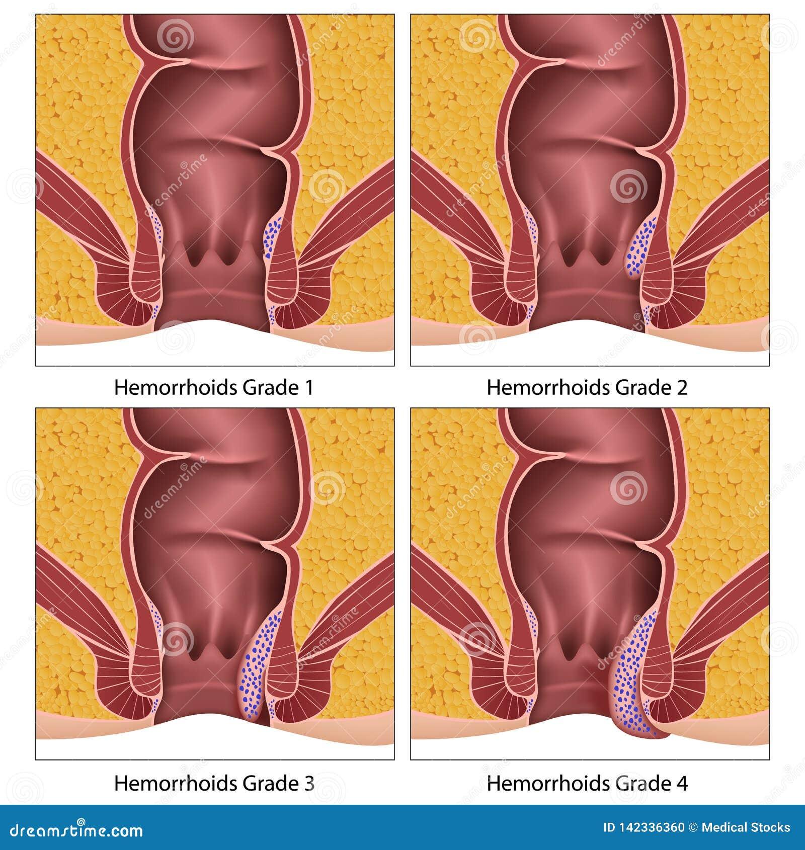Hämorriden ordnen Anatomieausbildungs-Informationsgraphik auf weißem Hintergrund