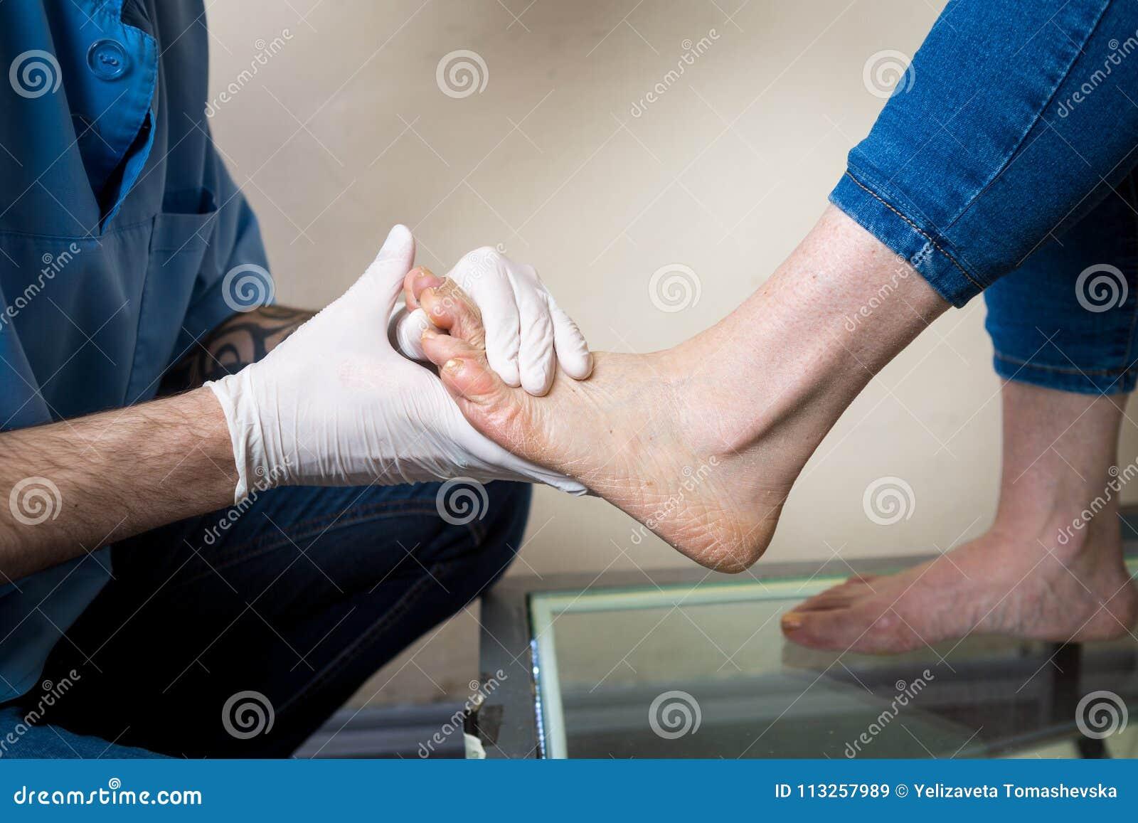 Händerna av en doktorsortoped för ung man för diagnostik, prov för fotfot av en kvinna, för tillverkningen av individen, eller