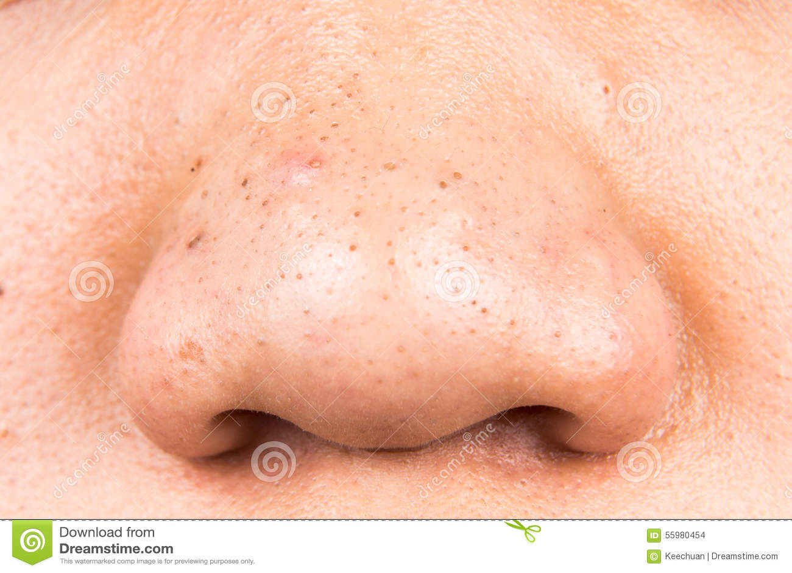 Nase hässliche Hässliche Nase?