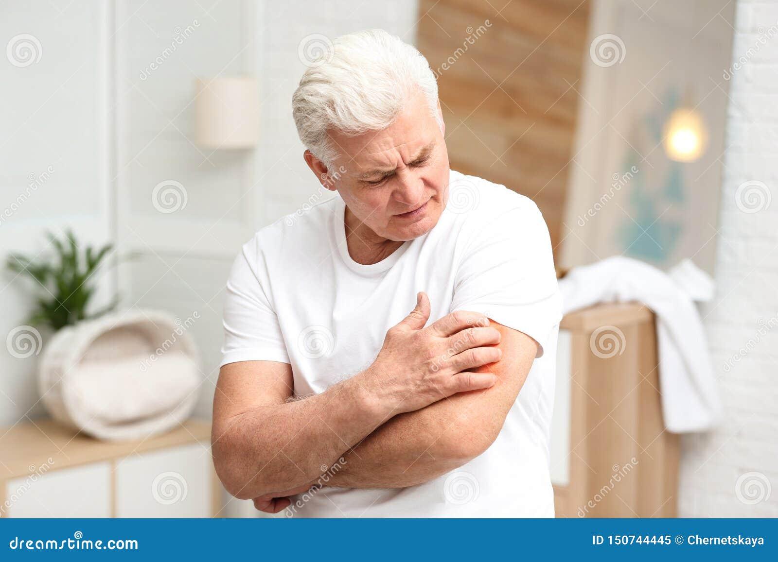 Hög man som skrapar armen Allergitecken