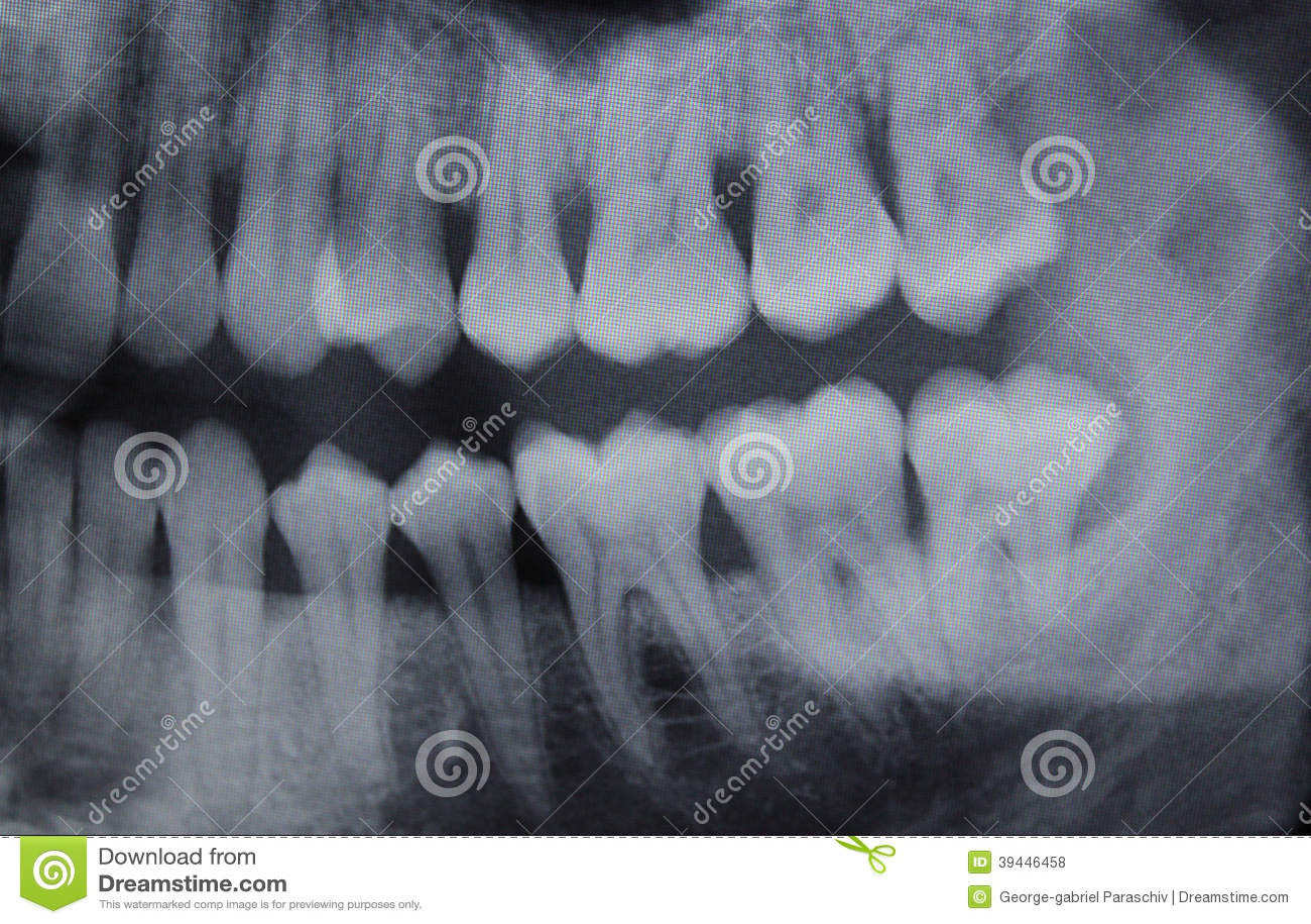 Höger halva för tand- röntgenstråle