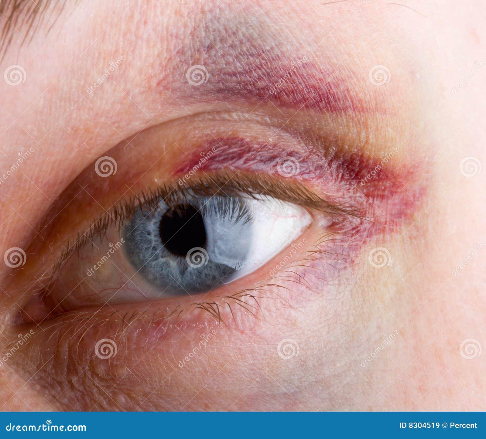 Haematoma ματιών