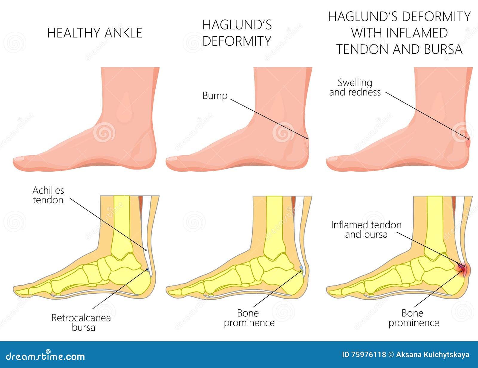 Haglund's Deformity Stock Vector - Image: 75976118