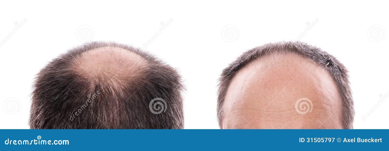 Hair Loss Stock Image Image Of Loss Receding Background 31505797