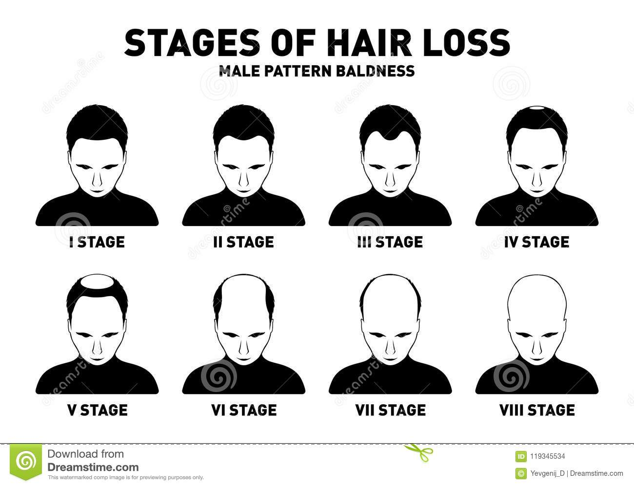 Male Pattern Baldness Stages Awesome Inspiration