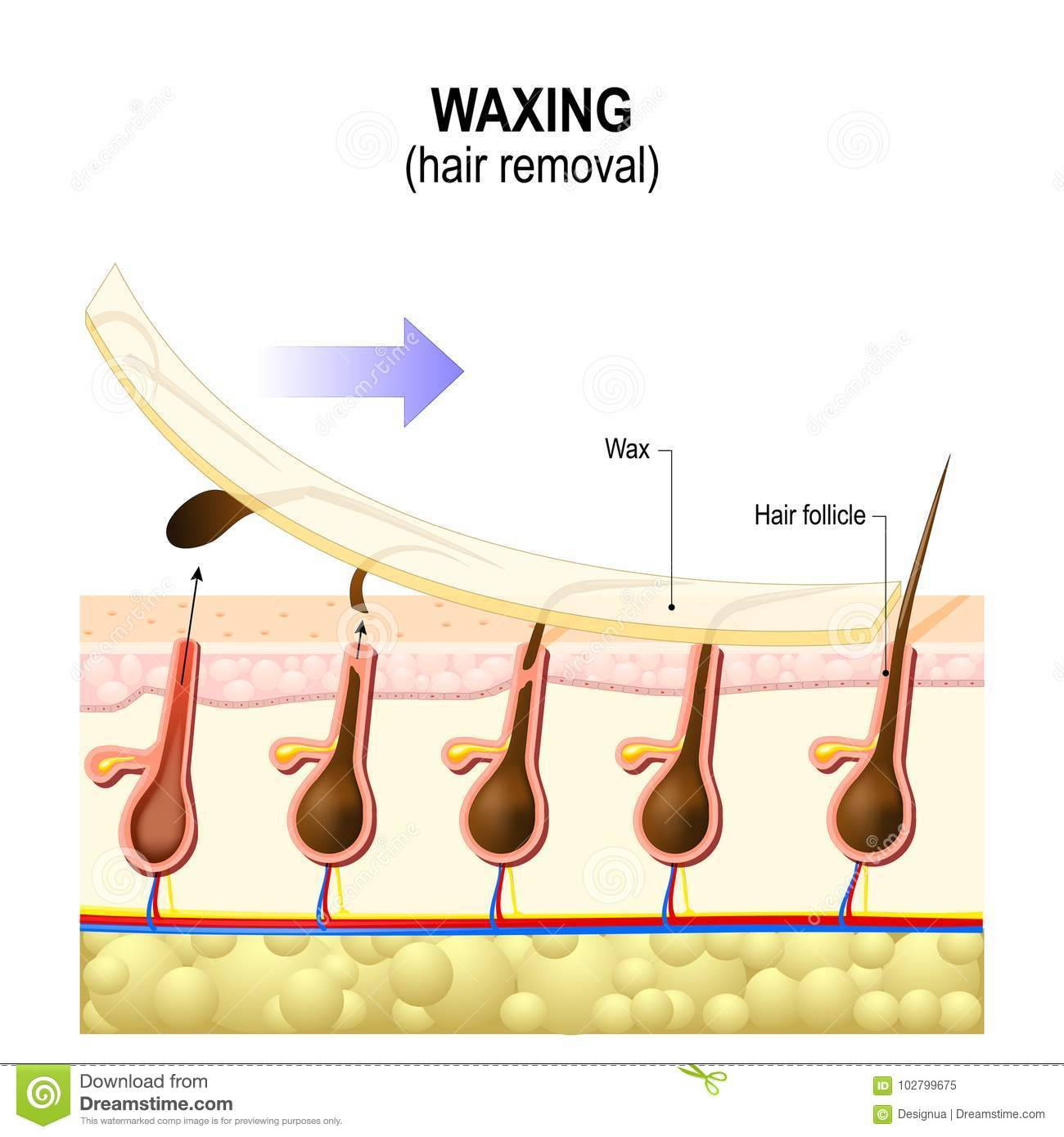 Waxing Hair Diagram Auto Electrical Wiring Diagram
