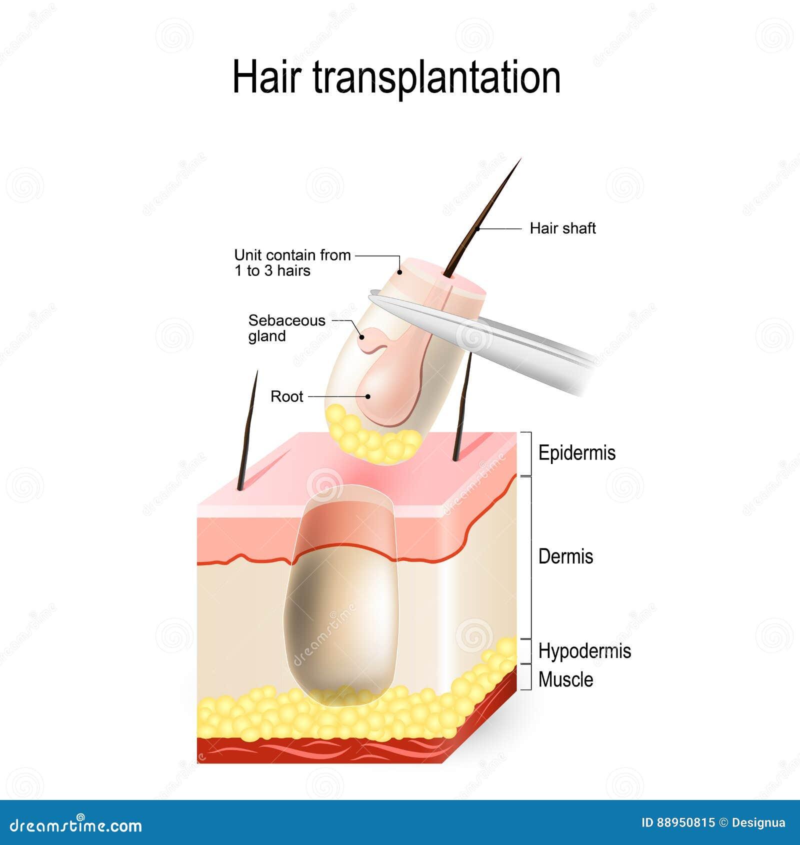 transplantation cartoons illustrations vector stock. Black Bedroom Furniture Sets. Home Design Ideas