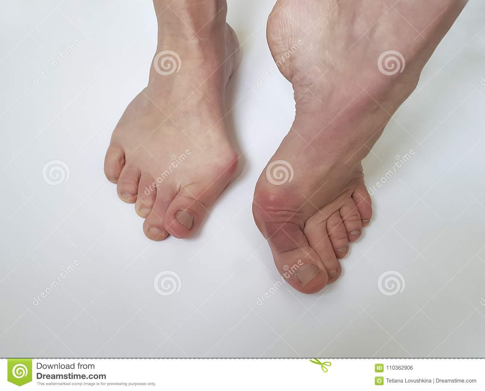 Hallux valgus female leg orthopedic deformity painful on a white background