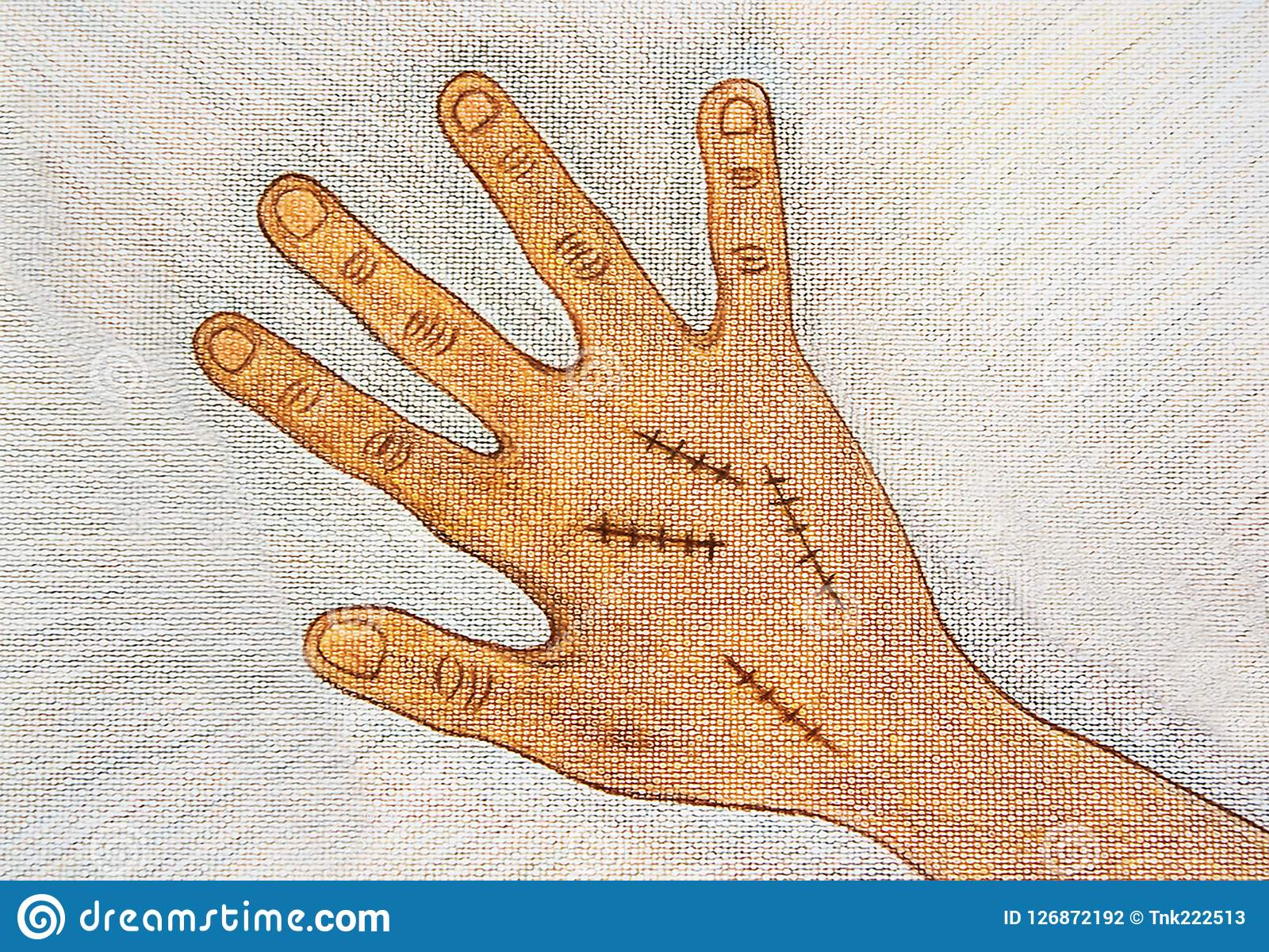 hand drawn right hand with surgical wound suture by wooden color