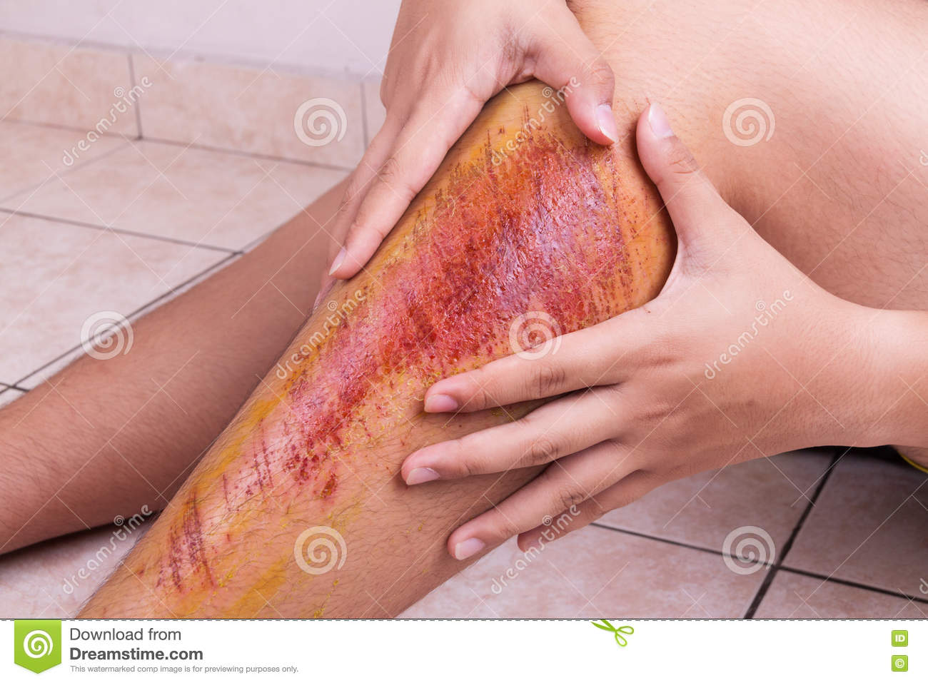 Download Hand Embracing Injured Knee With Painful Abrasion From Fall Stock Image
