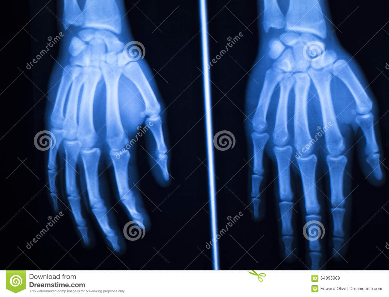 Hand Finger Thumb Hospital Xray Scan Stock Image - Image of part ...