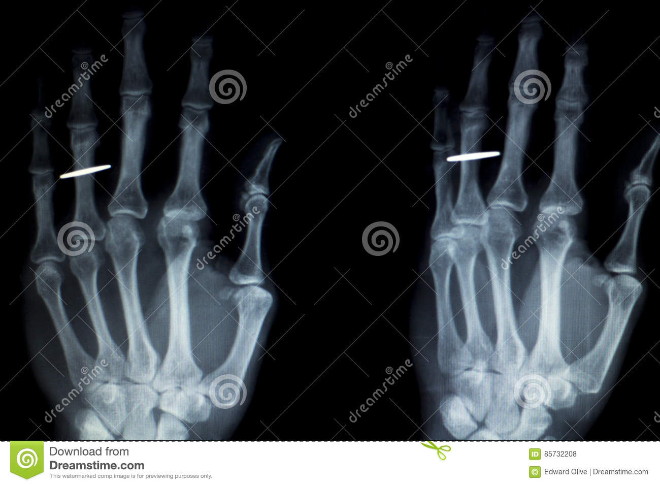 Hand Fingers Implant Xray Scan Stock Photo - Image of anatomy ...