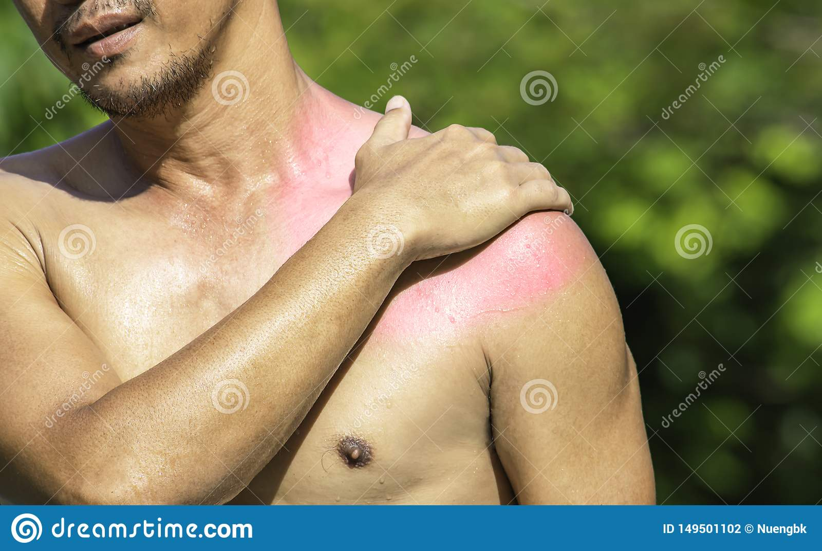 The hand grips the shoulder that inflammation from a sports injury