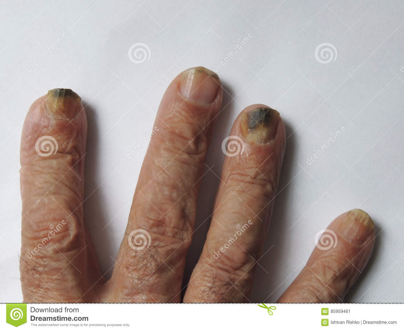 Hand Of A Man With Nail Fungus Stock Image - Image of medicine ...