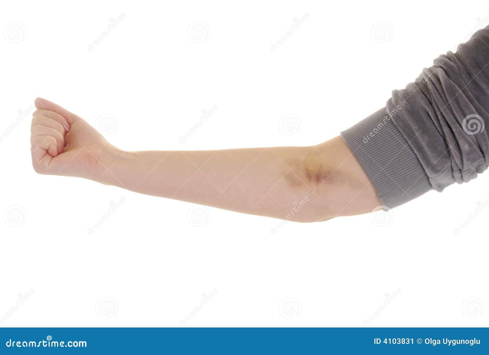 Hand met kneuzing