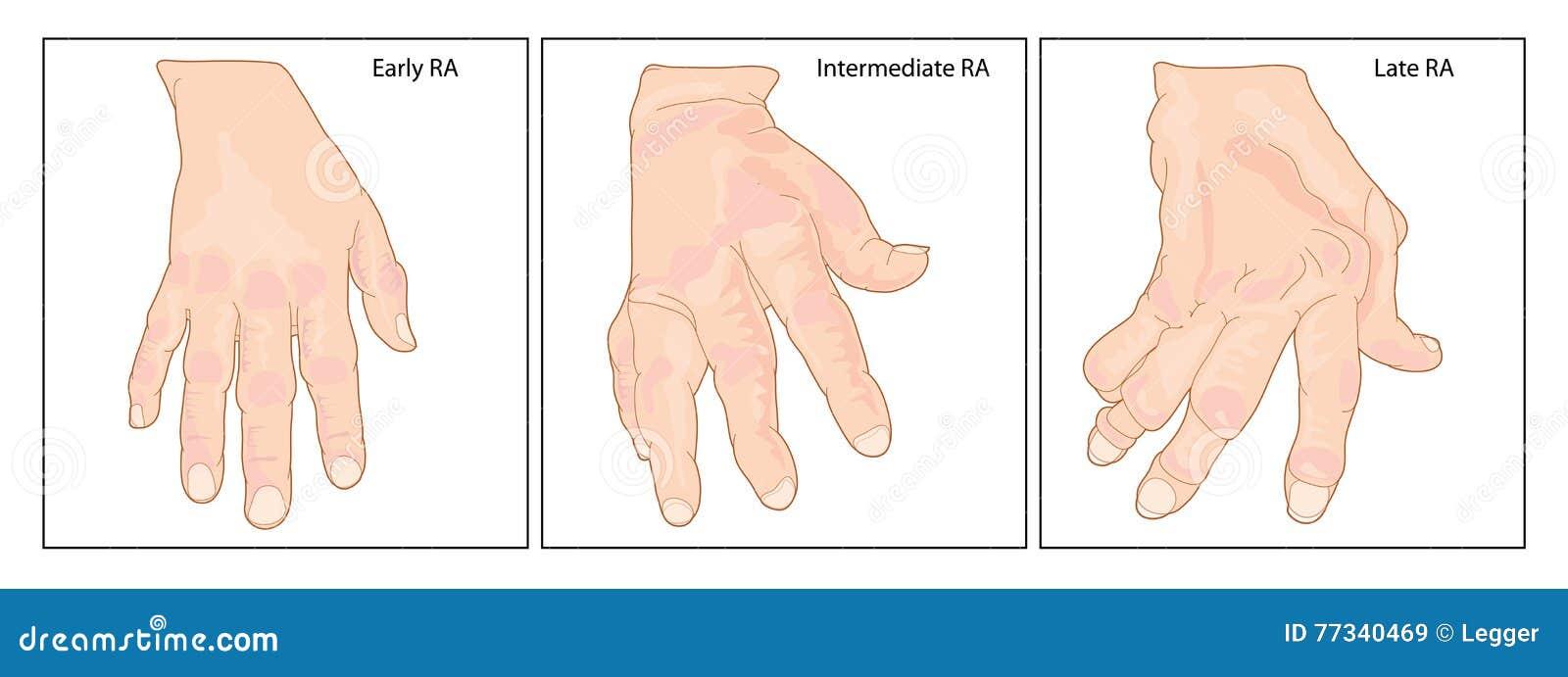 Hand met Reumatoïde Artritis