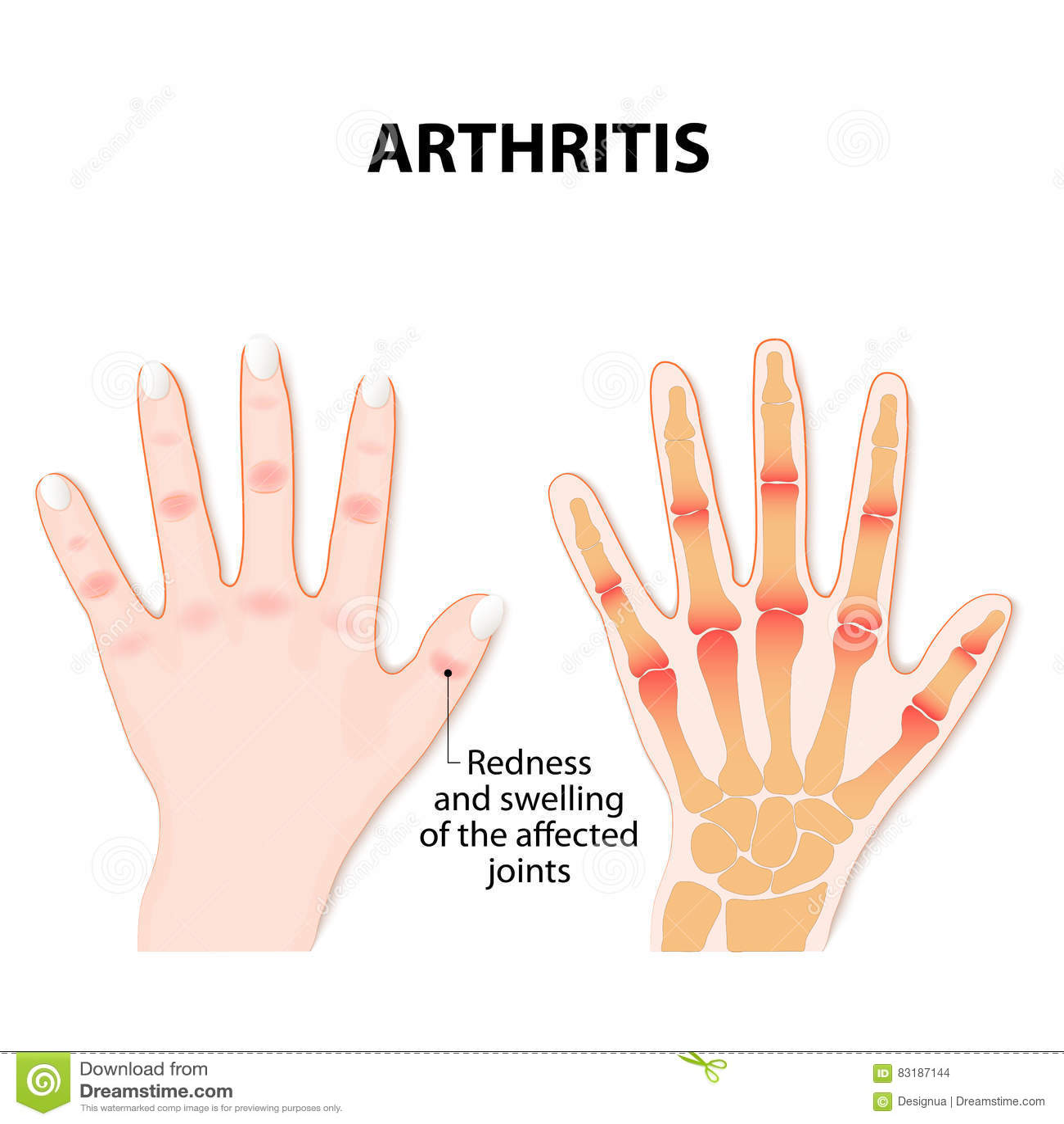 Hand mit Arthritis