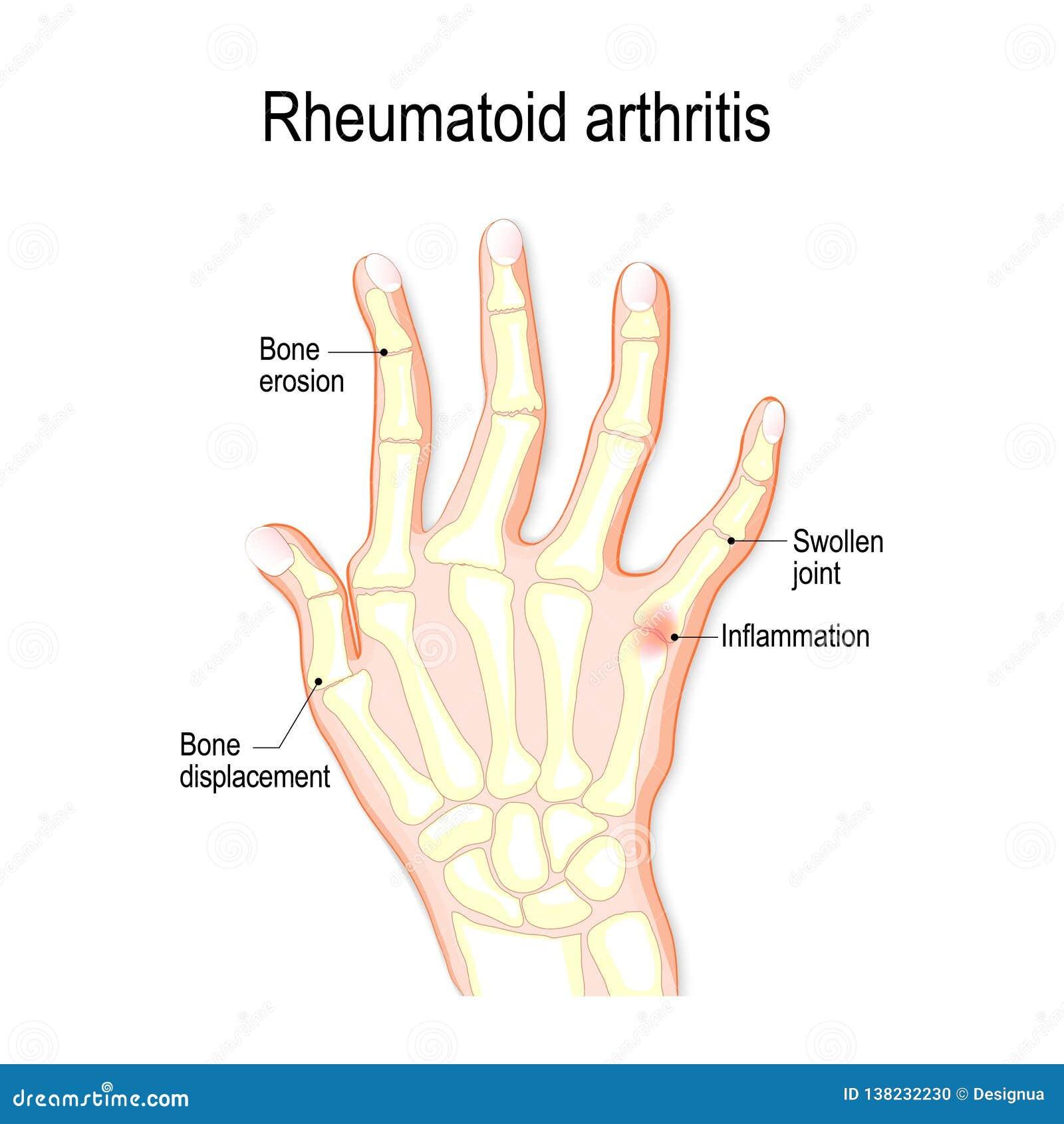 Hand mit rheumatoider Arthritis