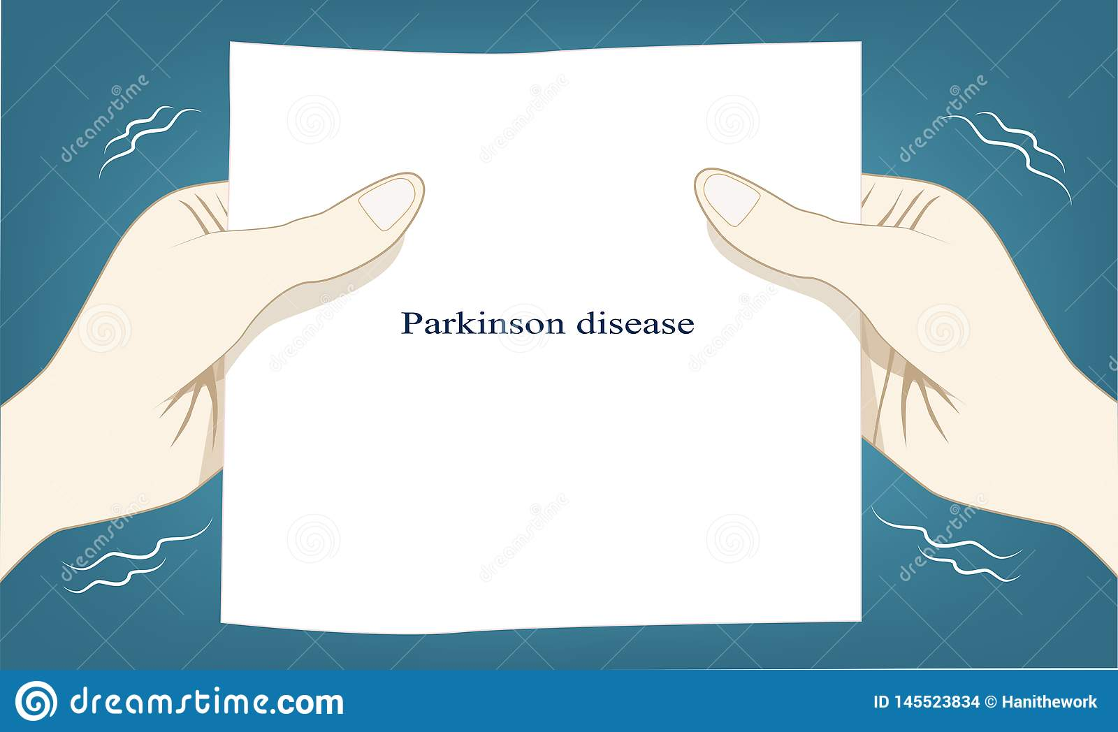 Hand shaking automatic is a cause of Parkinson disease