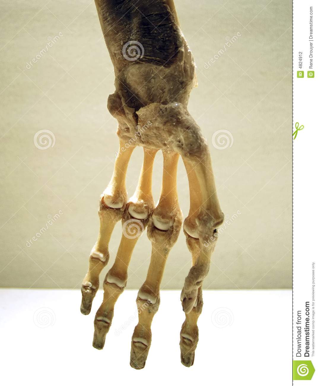 Hand Skeletal Stock Photo Image Of Anatomy Orthopedic 4824912