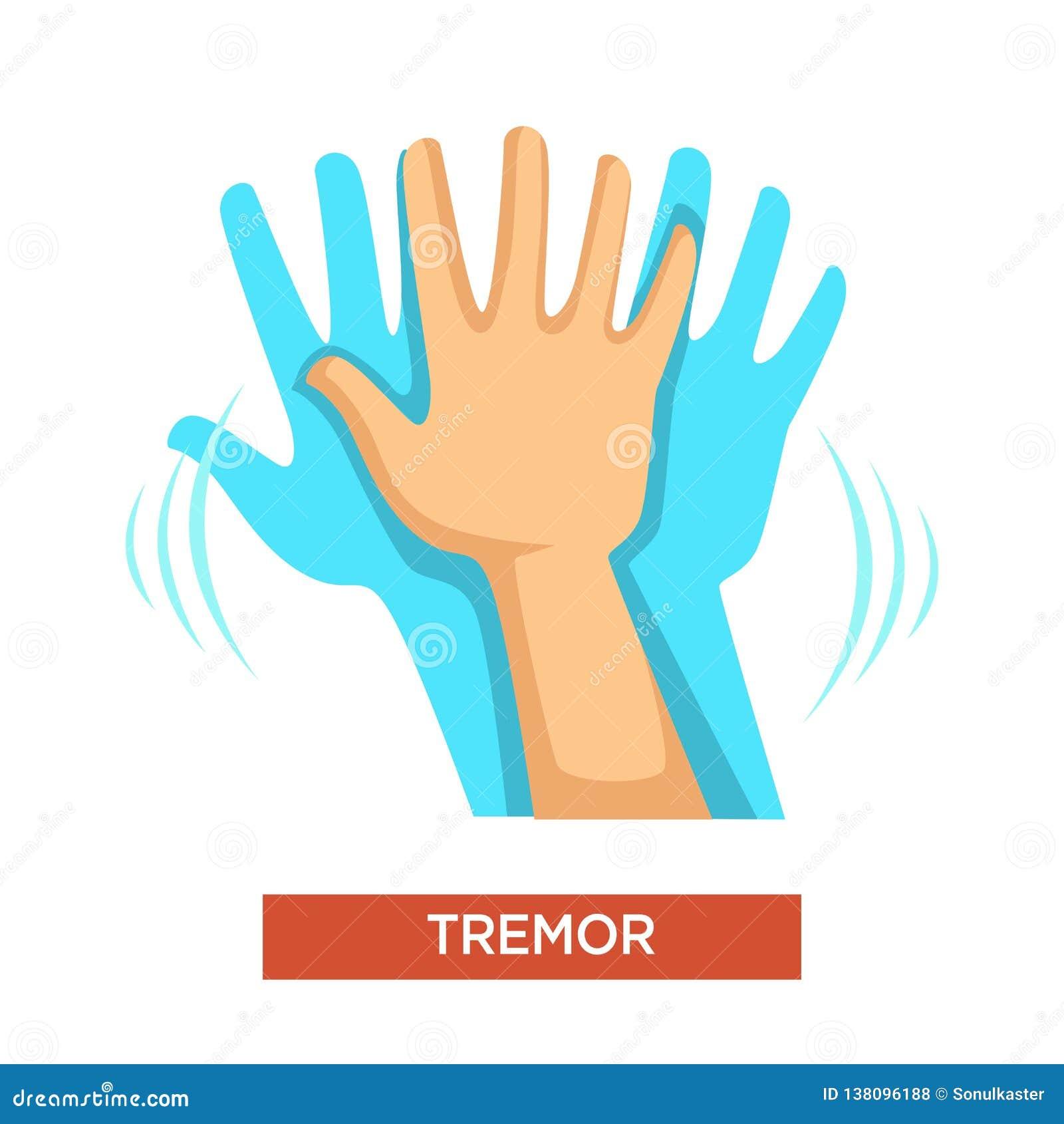 Hand tremor neurological disorder human body part