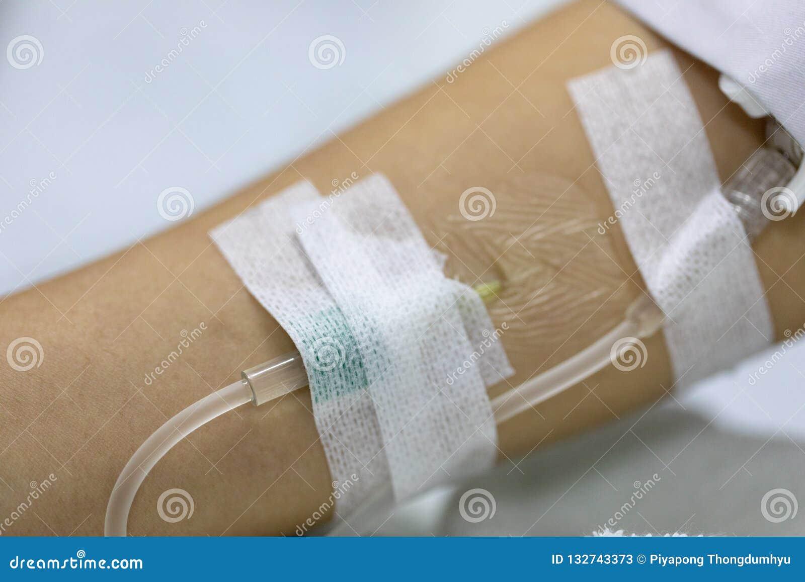 Saline injection bondage woman