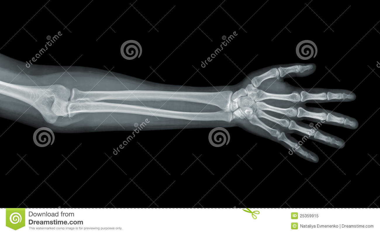 Hand x-ray view stock image. Image of anatomy, elbow ... Xray Arm