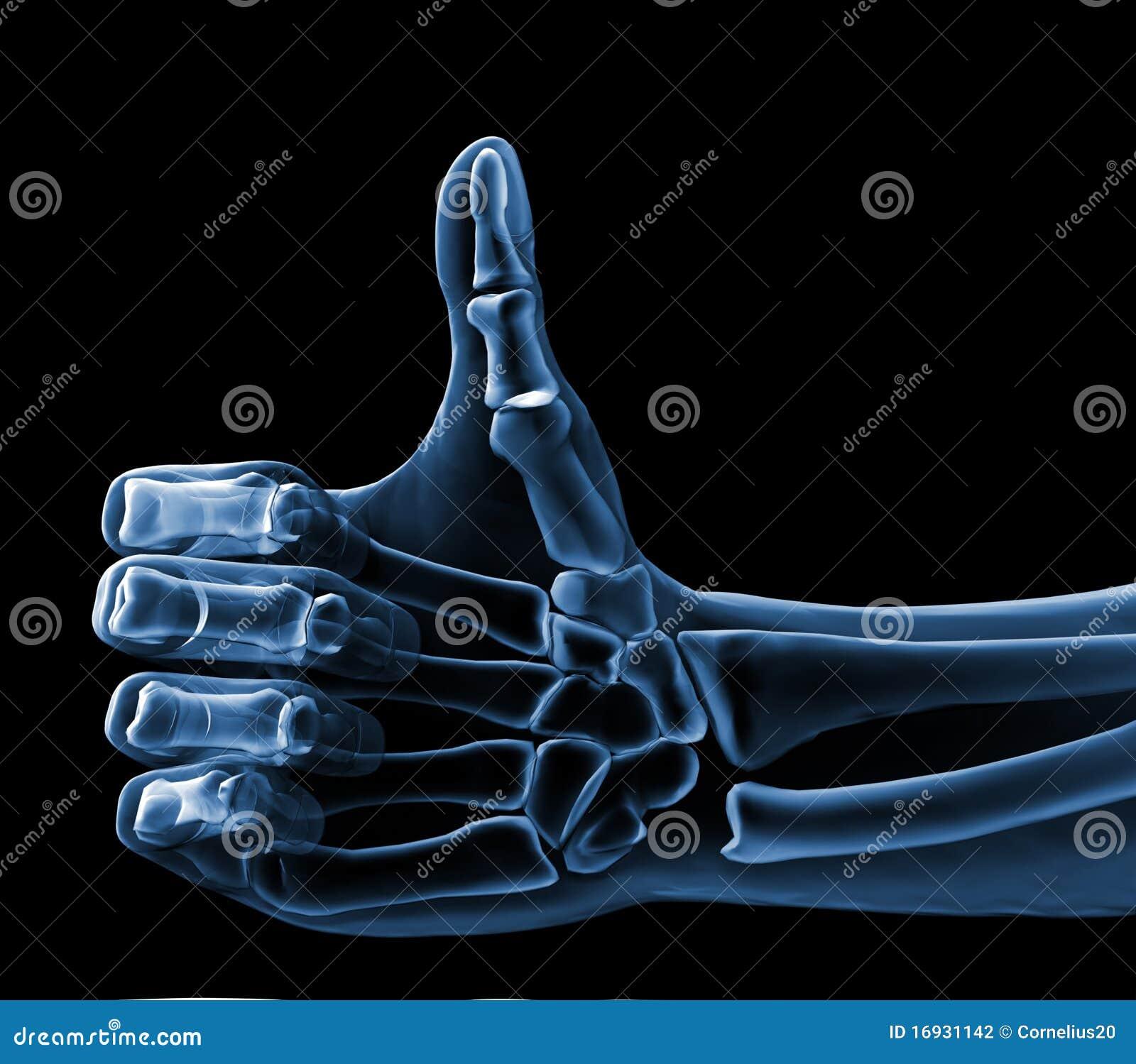 Xray hand showing ok sign Xray Hand Holding