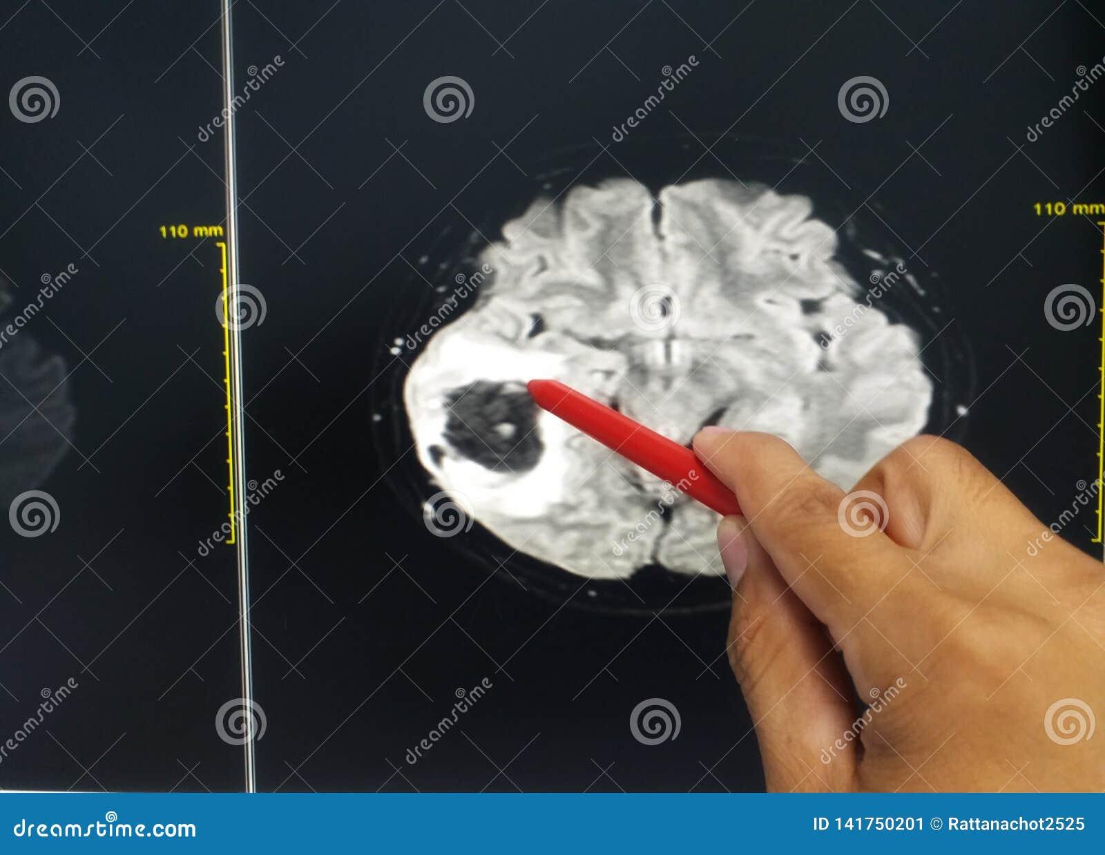Handdoktorn som rymmer en röd penna, berättar patienten undersökningsmrihjärnan som finner hjärntumör eller mass Medicinskt